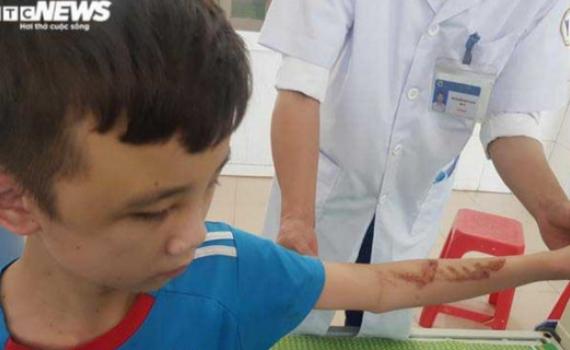 Xâm hại, bạo hành trẻ em: Cần tiêu chí giám định tổn thương cả về mặt tinh thần