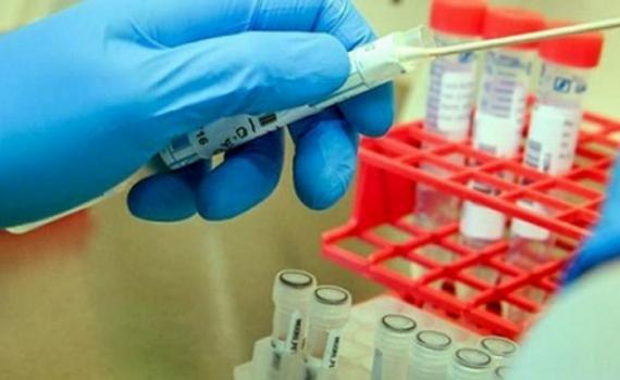 JCVI: Nên tiếp tục triển khai tiêm vaccine COVID-19 theo độ tuổi