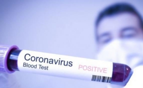 Việt Nam có ca nhiễm Covid-19 thứ 32, tiếp xúc gần bệnh nhân thứ 17