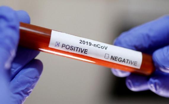 Quá trình điều trị cho bệnh nhân ung thư nhiễm Covid-19