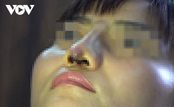 Ham thẩm mỹ dạo giá rẻ, một phụ nữ bị đứt lìa trụ mũi
